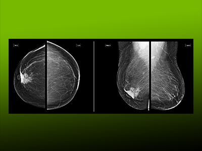 New Frontiers in Breast Cancer Detection
