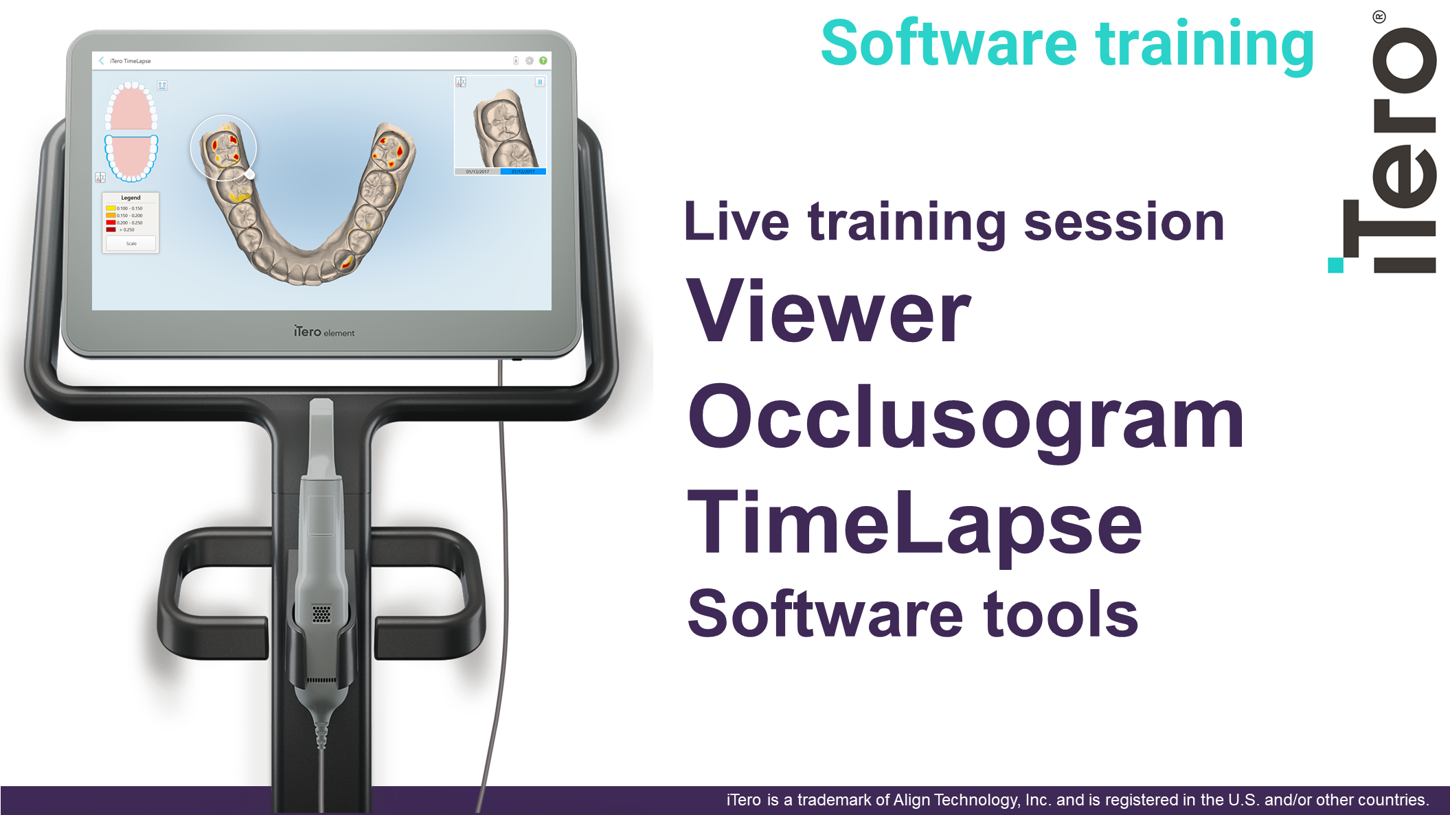 iTero Viewer/Occlusogram/Timelapse 12pmPDT(1pm MT/2pm CT/3pm ET)